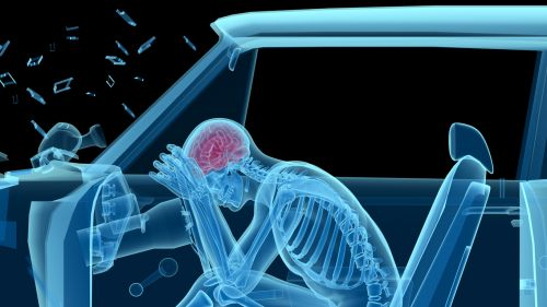 X-ray of a man in a car accident